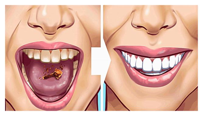 Photo of Dişlerinizdeki Tartar Lekelerinden Kurtulmanın 10 Etkili Yolu
