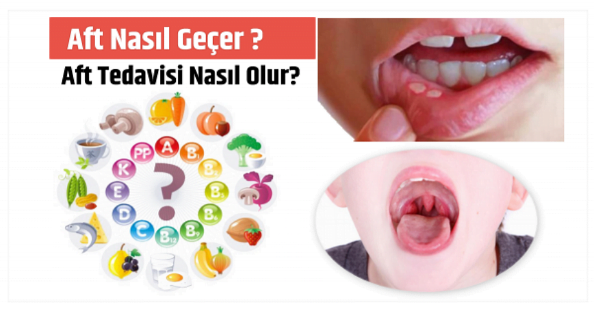 Photo of Aft Nasıl Geçer ve Aft Tedavisi Nasıl Olur?