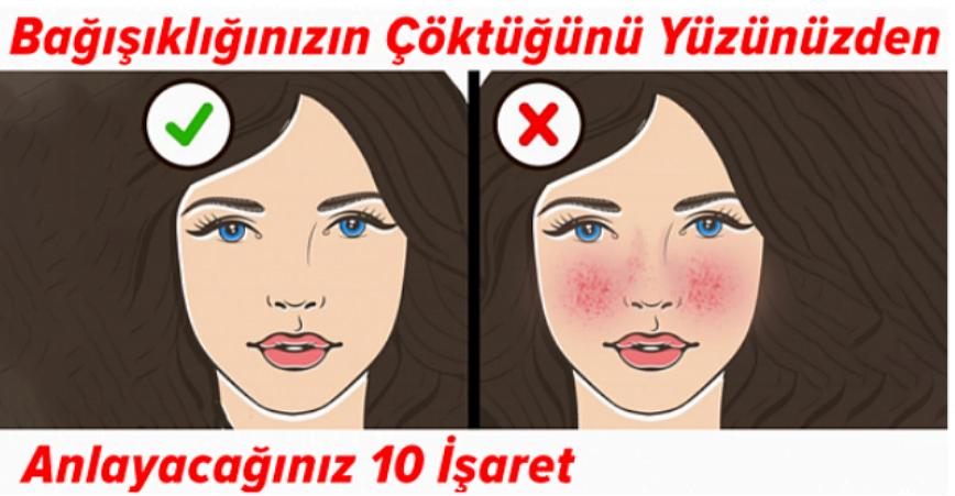 Photo of Bağışıklık Sisteminizin Çöktüğünü Yüzünüzden Anlayabileceğiniz 10 İşaret