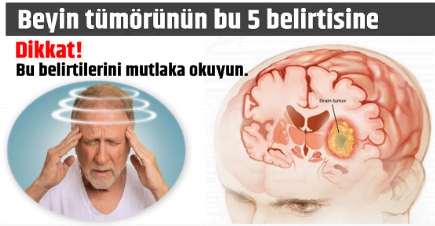 Photo of Beyin tümörünün bu 5 belirtisine dikkat