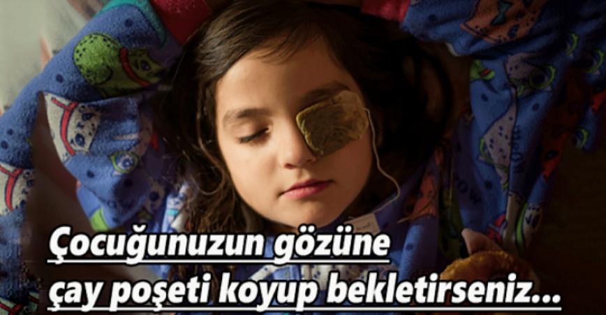 Photo of Çocuğunuzun Gözüne Çay Poşeti Koyup Bekletirseniz..