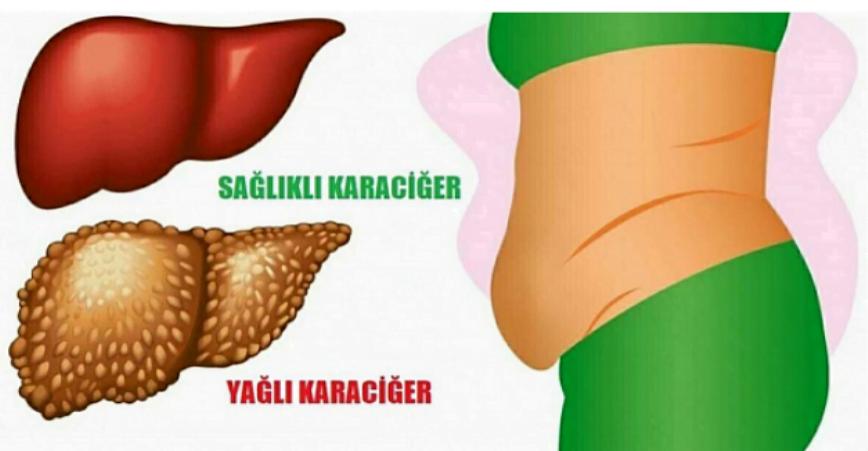 Photo of Karaciğerinizin Toksinlerle Dolu Olduğunun 6 Belirtisi