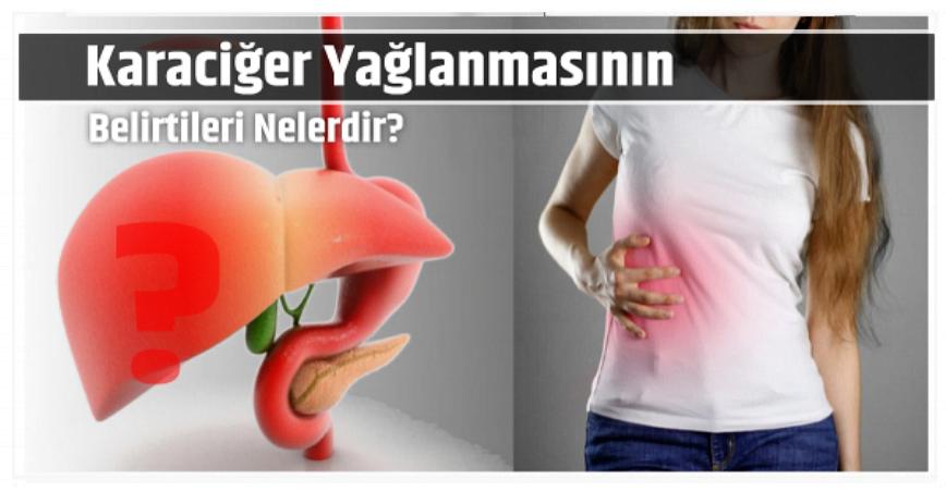 Photo of Karaciğer Yağlanmasının Belirtileri Nelerdir?