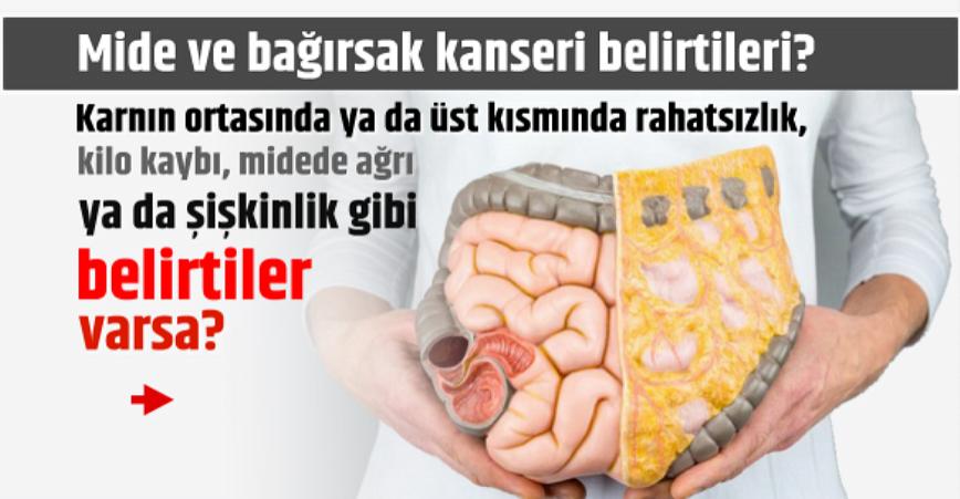 Photo of Mide Ve Kalın Bağırsak Kanseri Belirtileri!!