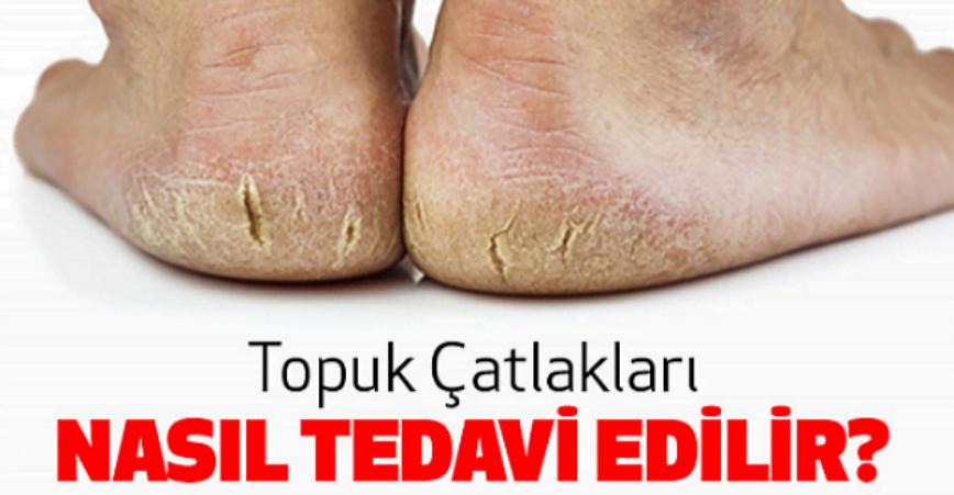 Photo of Topuk Çatlakları Tedavisi Nedir ?