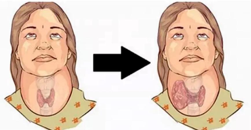 Photo of Tiroid'i Tetikleyen 5 Kötü Alışkanlık – Bu Alışkanlıklarınızdan Mutlaka Kurtulun