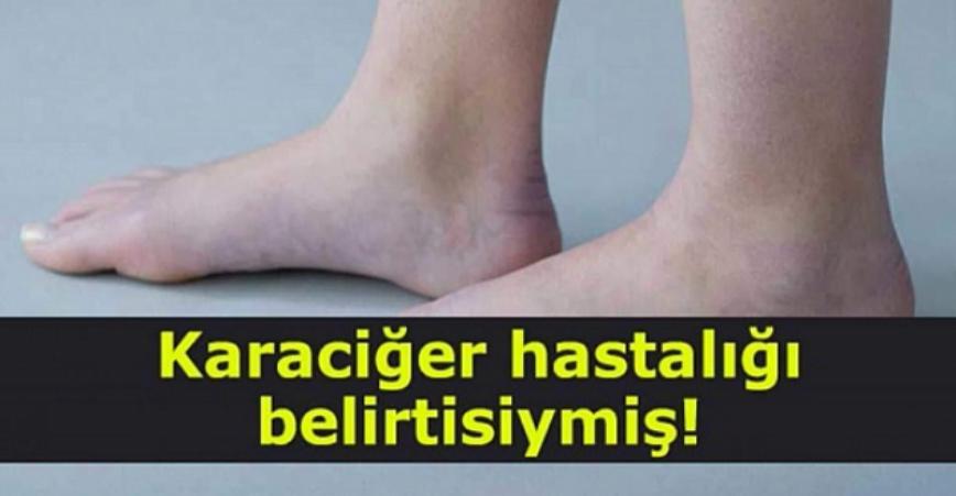 Photo of Meğerse Karaciğer Hastalığı Belirtisiymiş!!