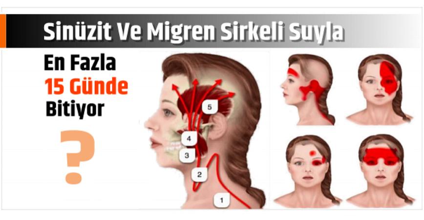 Photo of Sinüzit Ve Migren Sirkeli Suyla En Fazla 15 Günde Bitiyor