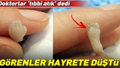 """Photo of DOKTORLAR """"TIBBİ ATIK"""" DEDİ, GÖRENLER HAYRETE DÜŞTÜ"""
